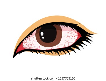 Red eye or cracked. Blood vessels and eyeball in cartoon vector style. Health concepts.