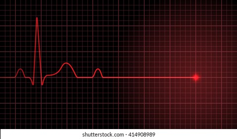 Red line heart rate on the screen indicates the cardiac arrest