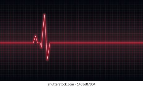 Red screen with electrocardiogram, heart rhythm
