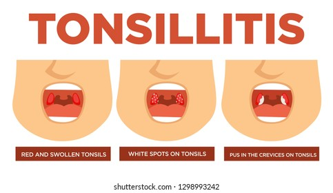 Red and swollen tonsils white spots pus in crevices vector tonsillitis open mouth disease or illness stages cold and fever with cough medicine and medical treatment healthcare and recovery symptoms.