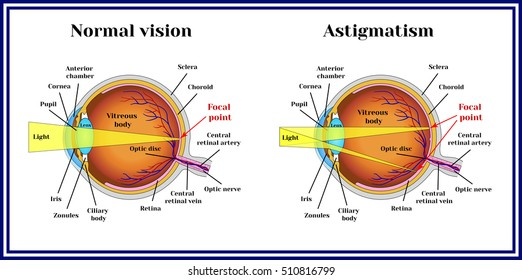 Refractive errors eyeball. Astigmatism.