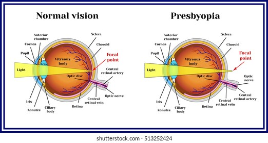 Presbyopia Images Stock Photos Vectors Shutterstock