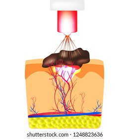 Removal of birthmarks, popiloma, wart laser. The structure of moles on the skin. Infographics. Vector illustration on isolated background.