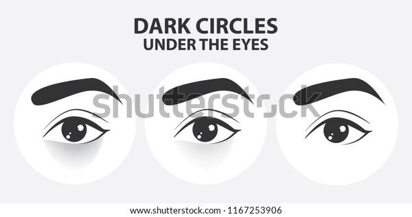 Removal Dark Circles Under Eyes Vector Stock Vector (Royalty
