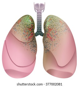 Respiratory system smoker. Lung cancer. Isolated on white illustration
