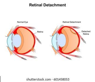 Retinal Detachment color vector illustration