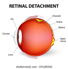 Retinal detachment is an eye disease in which the part containing the optic nerve is removed from its usual position at the back of the eye.