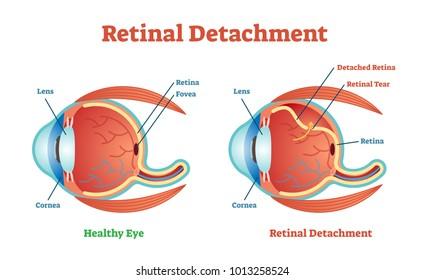 Retinal Detachment vector illustration diagram, anatomical scheme. Medicinal educational information.