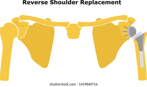 Reverse Shoulder Replacement. Shoulder joint replacement, endoprosthetics. Osteoarthrosis of the shoulder joint. Vector illustration. Flat design.