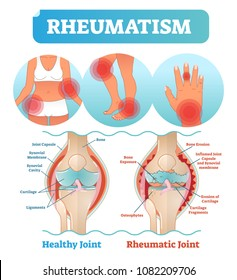 Rheumatism medical health care vector illustration poster diagram with damaged knee erosion and painful body joints. Healthy knee joint comparison to rheumatic one. Anatomical scheme.