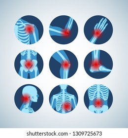 Rheumatism or rheumatic disorder medical set. Arthritis joint pain syndrome. Different body parts with pain rings on hand, leg and feet, spine, scull, pelvis. Rheumatology vector infographics elements