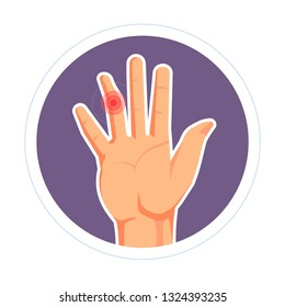 Rheumatoid arthritis or dislocation finger injury isolated human palm vector bone trauma pain or ache joint disease skeletal system illness chiropractic treatment or medicine skeletal fracture
