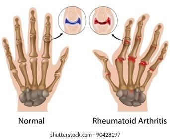 Rheumatoid arthritis of finger joint with details of hand bone anatomy