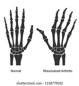 Rheumatoid arthritis of the hands. Black silhouettes isolated on white background. Vector illustration