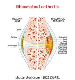 Rheumatoid arthritis. Healthy and damage joint. Close-up of bone, cartilage, and Cells in a joint capsule: synoviocytes, osteoclast, neutrophil, T lymphocyte, B-cell, macrophage,  mast cell