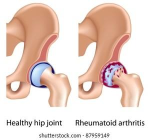 Rheumatoid arthritis of hip joint