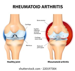 Rheumatoid Arthritis (RA) is an inflammatory type of arthritis that usually affects knees. the auto immune disease. The body's immune system mistakenly attacks healthy tissue.
