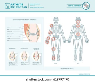 Rheumatoid arthritis, osteoarthritis and joint pain infographic with inflammation spots and anatomical illustration