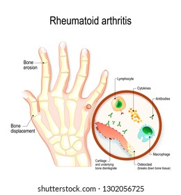 Rheumatoid Arthritis (RA) is an auto immune disease and inflammatory type of arthritis that usually affects joints. hand with rheumatoid arthritis