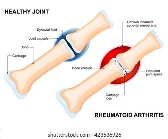 Rheumatoid Arthritis (RA) is an inflammatory type of arthritis that usually affects joint. auto immune disease.