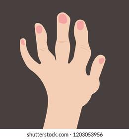 Rheumatoid polyarthritis of hands, arthritis; arthrosis. Vector illustration