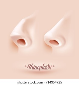 Rhinoplasty surgery example. Nose before and after rhinoplasty. Vector illustration