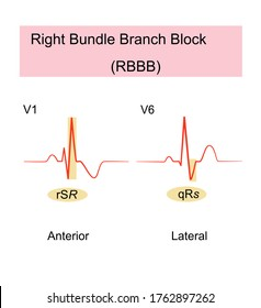 Right Bundle Branch Block(RBBB) of ECG is a heart block ,T wave inversions and ST segment depression are normal in leads V1 to V3, wide QRS complexes with a terminal R wave in lead V1