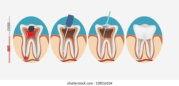 Root Canal Images Stock Photos Vectors Shutterstock