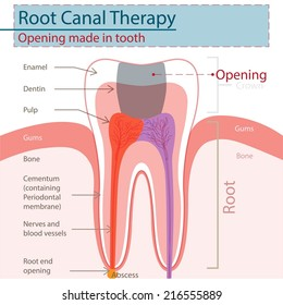 Root Canal Therapy.