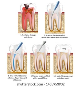 root canal treatment medical vector illustration isolated on white background tooth infographic