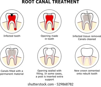 ROOT CANAL TREATMENT vector illustration