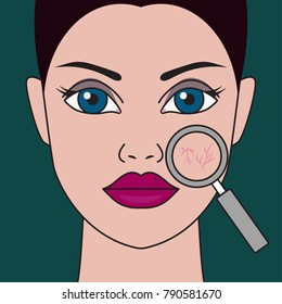 Rosacea on face of girl. Enhanced red blood vessels through magnifying glass. Vector illustration