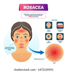 Rosacea vector illustration. Labeled red skin problem explanation scheme. Educational facial dermatology illness diagnosis diagram with symptoms. Educational visible blood vessels syndrome infographic