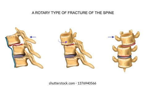 rotational type of vertebral fracture