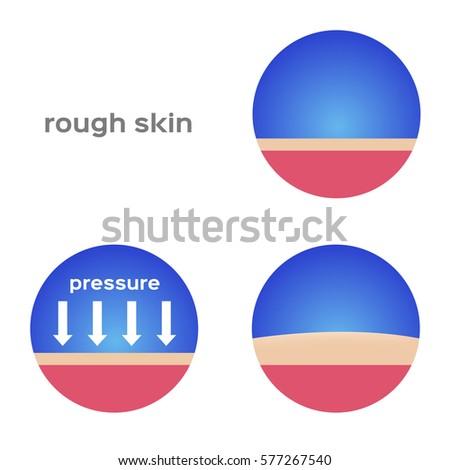 rough skin callus vector 450w 577267540 rough skin callus vector stock vector (royalty free) 577267540