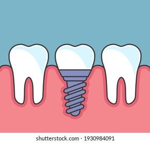 Row of teeth with dental implant, dental prosthetics icon flat style, vector