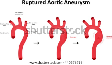 ruptured aortic aneurysm labeled diagram 450w 440376796 ruptured aortic aneurysm labeled diagram stock vector (royalty free