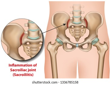 Sacroiliac joint inflammation 3d medical vector illustration sacroiliitis