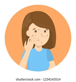 Sad woman with acne on the face. Pimple on the face. Dermatology problem and puberty. Trouble with skin. Isolated flat vector illustration