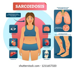 Sarcoidosis vector illustration. Lungs, heart, eyes autoimmune disease. Infographic with granulomas and scar tissues in bronchi and trachea. Possible symptoms of illness.