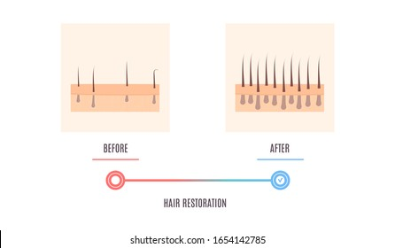 Scalp close up of hair follicles before and after alopecia treatment. Skin cross-section medical diagnostics diagram. Hair loss treatment and transplantation concept. Vector illustration.
