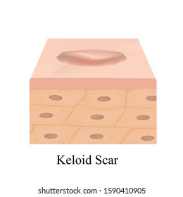 Scars Keloid. The anatomical structure of the skin scar. Vector illustration on isolated background.