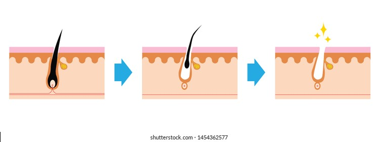 Scheme of human hair loss stages and growth