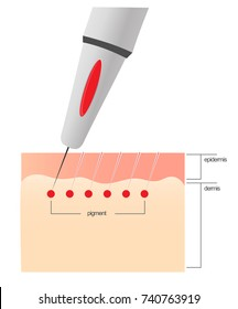 The scheme of the procedure of permanent makeup.