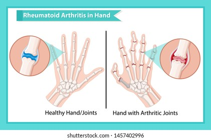 Scientific medical illustration of rheumatoid arthritis illustration