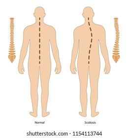 Scoliosis. Anterior view. Vector illustration