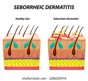Seborrhea skin and hair. Dandruff seborrheic dermatitis. Eczema. Dysfunction of the sebaceous glands. Inflammatory skin disease. Anatomical structure. Infographics. Vector illustration.