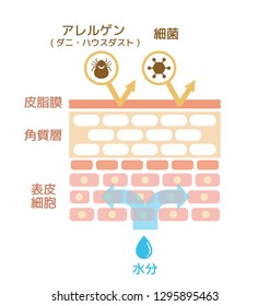 Sectional view of the skin. Healthy skin illustration (Japanese) .Translation: epidermis,dermis,allergen,virus,bacteria,sebum.