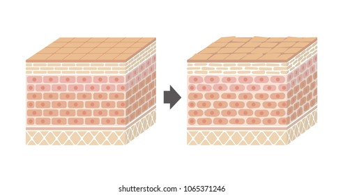 Sectional view of the skin.Comparison illustration of healthy skin and wounded skin.