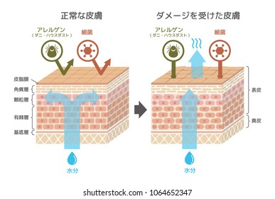 Sectional view of the skin.Comparison illustration of protection effect between healthy skin and wounded skin (Japanese). translate: epidermis,dermis,sebum, stratum corneum,glanular cell layer,spinous